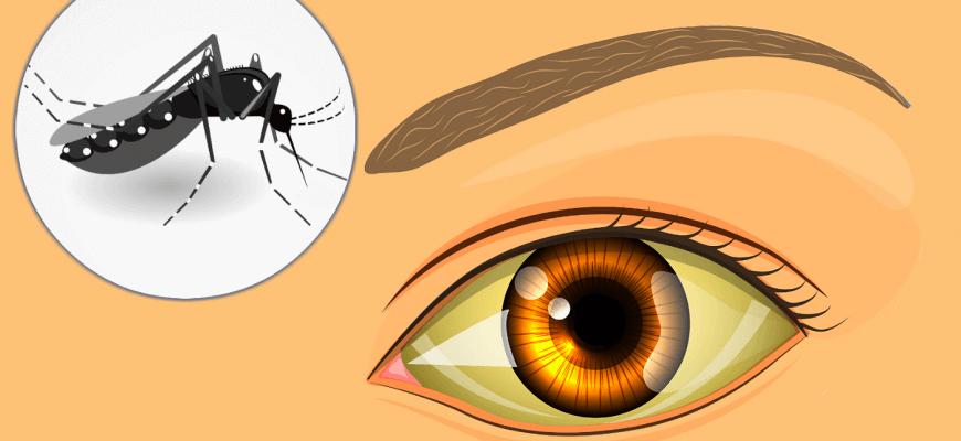 Sintomas da Febre Amarela | Valor de Planos de Saúde