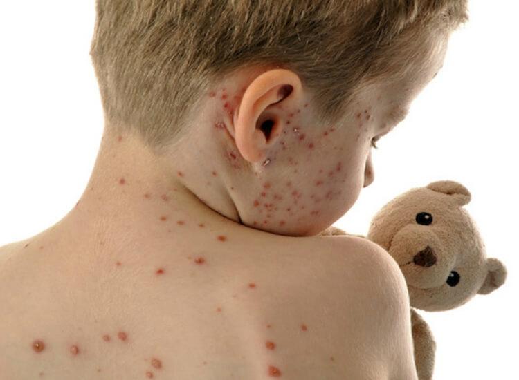sintomas de sarampo