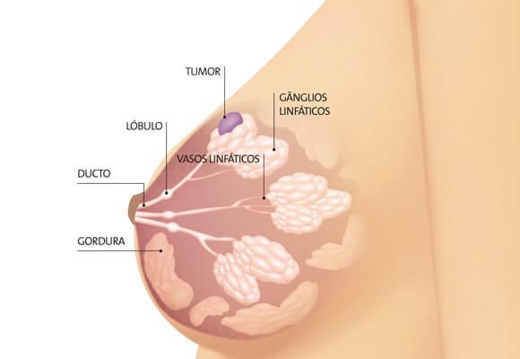 mês de prevenção ao câncer de mama