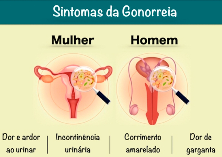 gonorreia
