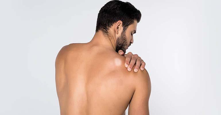 sintomas de lepra final