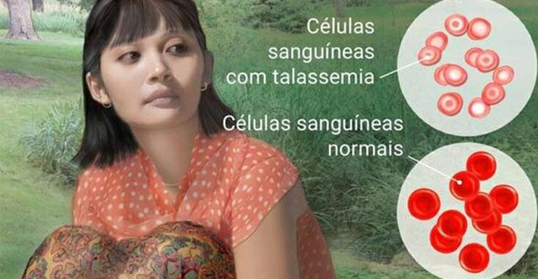 talassemia sintomas