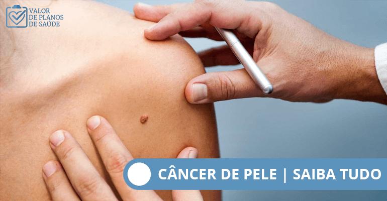 câncer-de-pele-capa