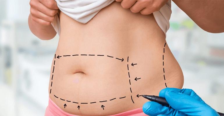 mulher com marcações para cirurgia plástica na barriga