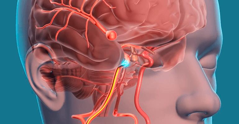 Representação 3D de um aneurisma cerebral