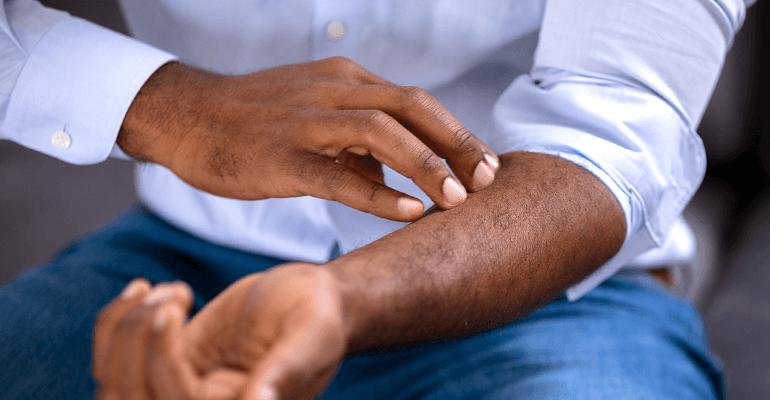 homem coçado braço - alergias na pele