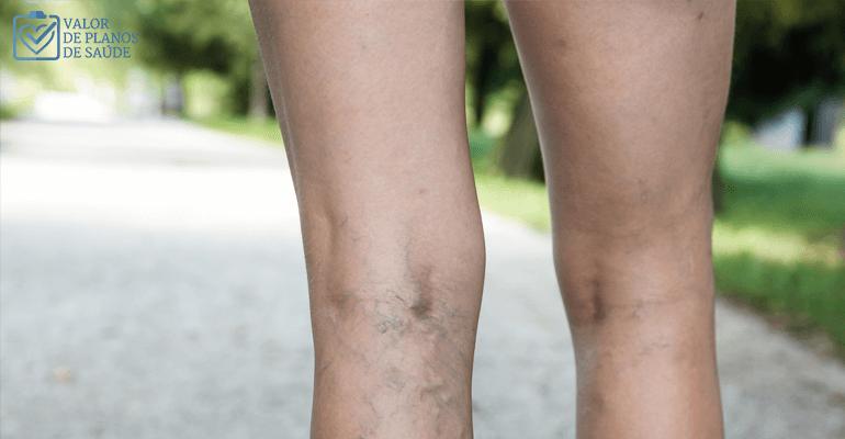 veias com trombose na perna